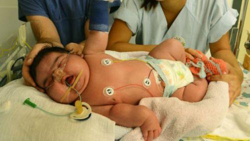 Макросомия у новорожденного