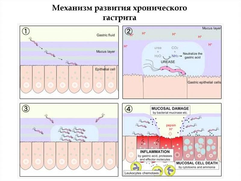 Механизм развития гастрита