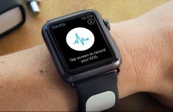 Умный ремешок для часов Kardia поможет сердечникам