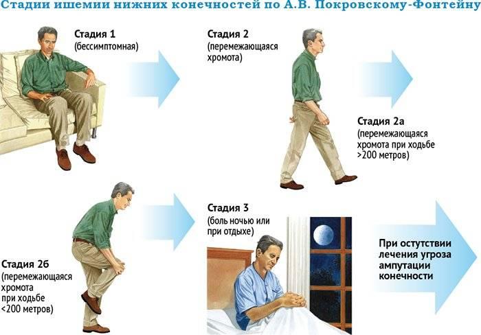 Описание, симптомы четырех стадий атеросклероза ног