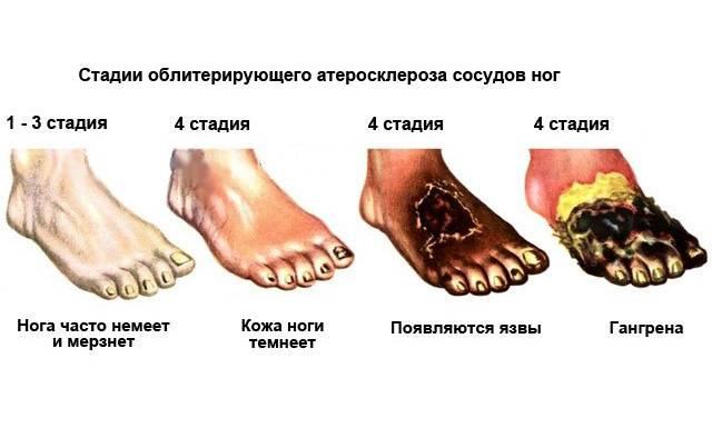 Стадии атеросклероза ног