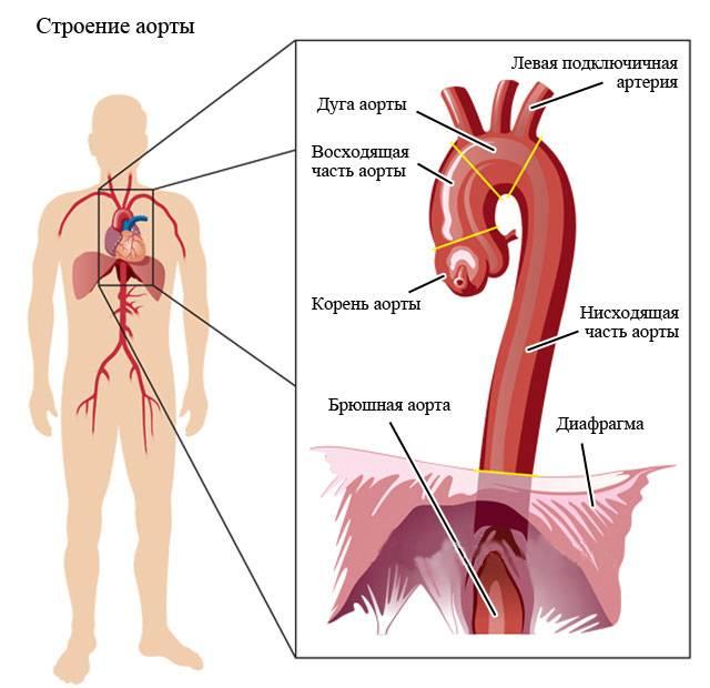 Места поражения аорты атеросклеротическими бляшками
