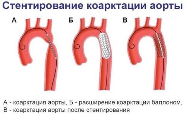 Операции на аорте