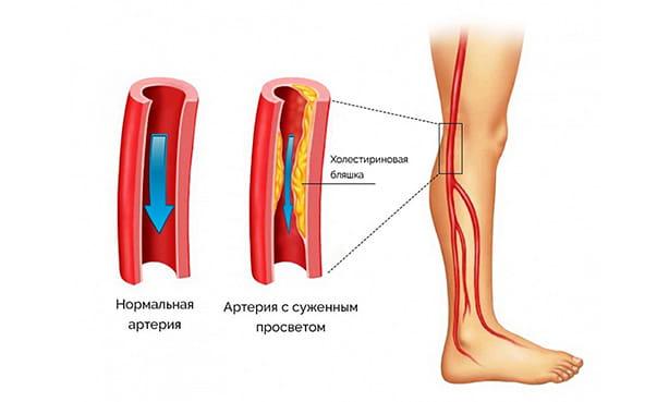 Атероматозная бляшка сужает просвет артерии в ноге