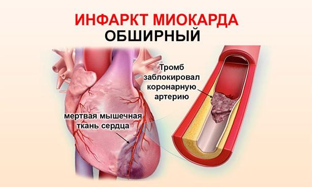 Инфаркт миокарда без зубца Q
