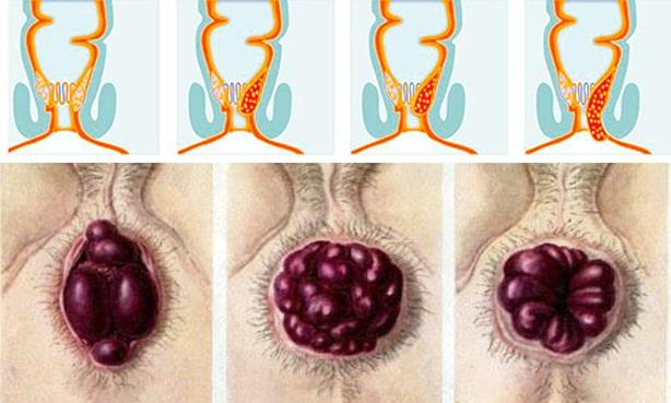 Внутренний геморрой 3-4 стадии