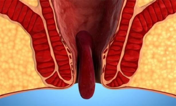Выпадение внутреннего геморроидального узла