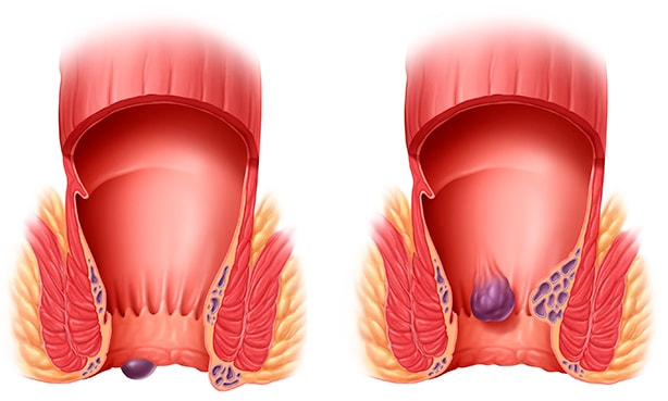 Внутренние и наружные геморройные шишки