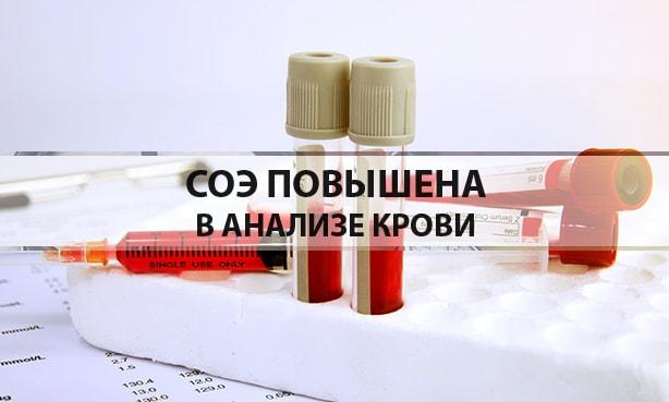 СОЭ в анализе крови